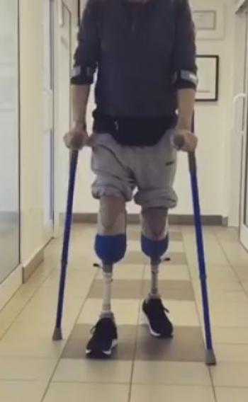 protezy kkd
