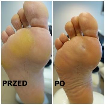 Zabieg pedicure leczniczy