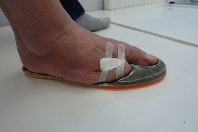 Protezowa wkładka do buta uzupełniająca palce