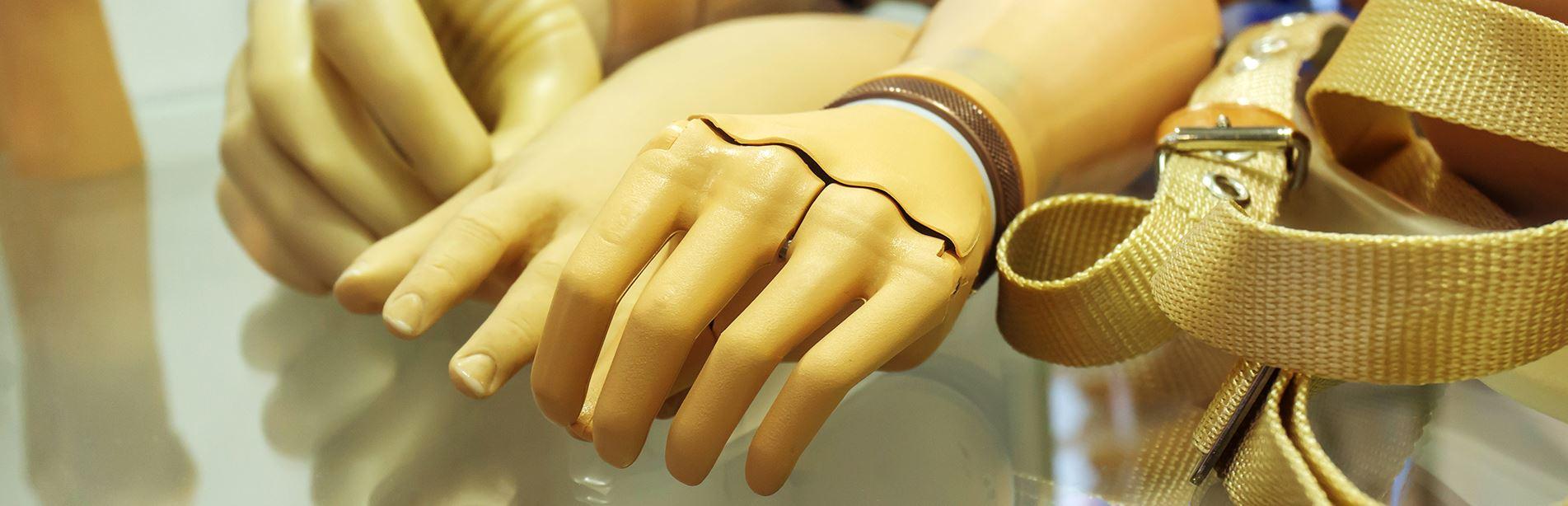 Protezy kończyn górnych